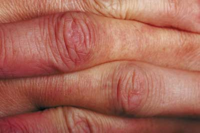 DHEC, Community Partners Unite to Fight Increase of Arthritis